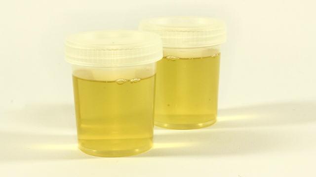 Da li ljudski urin može da zameni đubriva?
